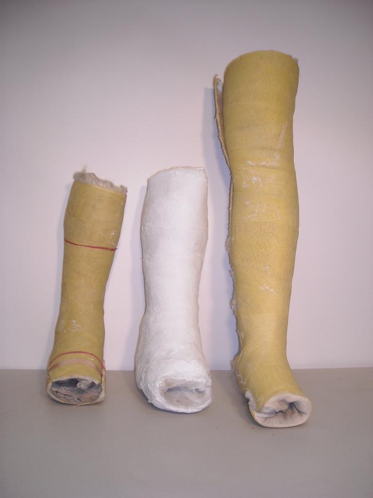 Plaster Cast Leg